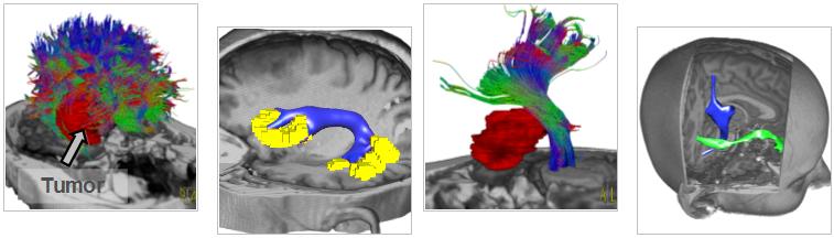 Rekonstruktion und Clustering neuronaler Bahnen