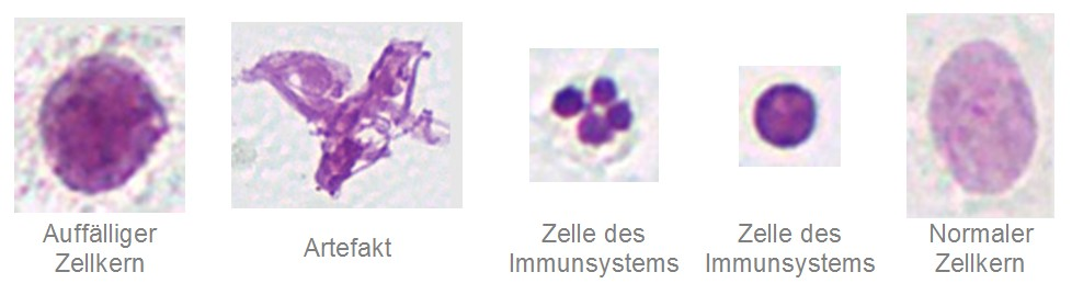 digitale_zytopathologie_several_nuclei